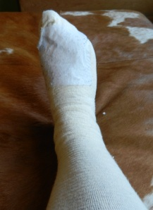I don't yet know what my foot looks like under the bandages